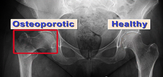 Nanoparticles for the Regeneration of Bone Fractures and Osteoporosis