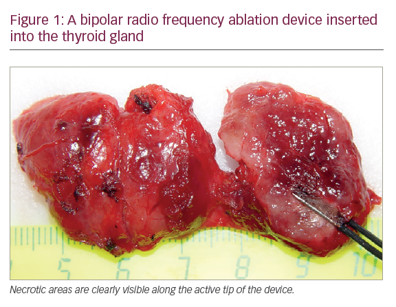Morphological Changes Induced By Bipolar Radiofrequency Ablation