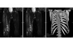 Tumour-induced Osteomalacia Secondary to a Sarcoma
