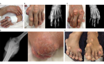 Case Report Severe Hypercalcaemia – Chronic Tophaceous Gout as the Responsible Cause?